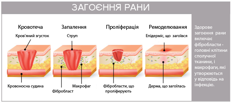wound-healing-steps-bleeding-inflammation-scab-proliferation-remodeling-epidermis